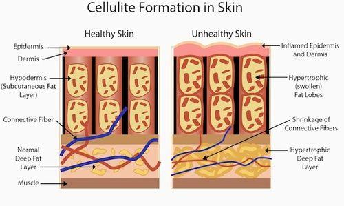 Cellulite, come si forma nella pela