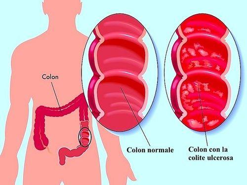 dieta gonfia del colon e gastrite