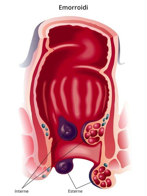 le emorroidi causano perdita di peso