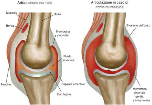 minzione frequente e dolori articolari