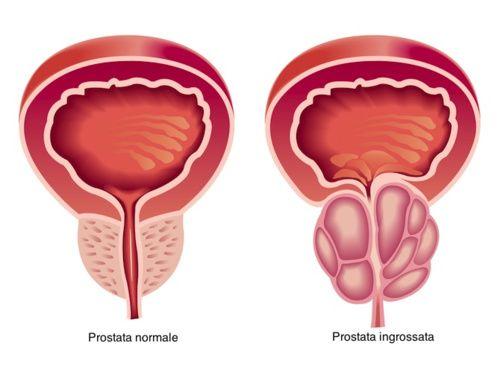 Prostata ingrossata per ritenzione urinaria