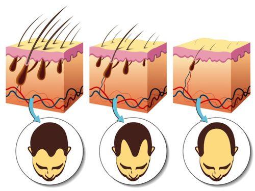 Alopecia, sintomi, cause e rimedi naturali