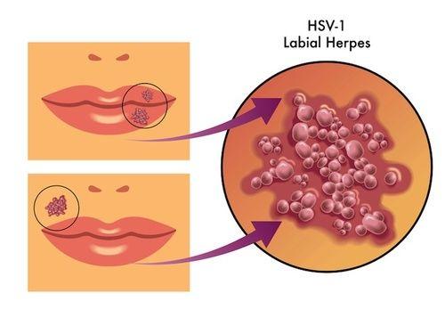 Herpes labiale, cure e rimedi naturali