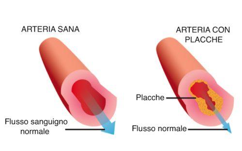 Effetti del colesterolo alto
