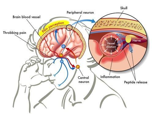 Mal di testa sintomi cause tutti i rimedi cure for Mal di testa da cervicale quanto puo durare