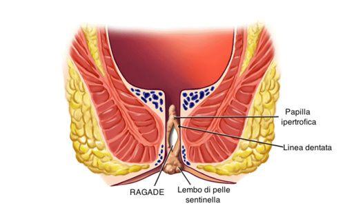 Movimento intestinale durante il sesso anale