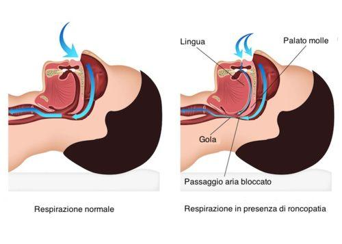 Russare Sintomi Cause Tutti I Rimedi Cure Naturali It