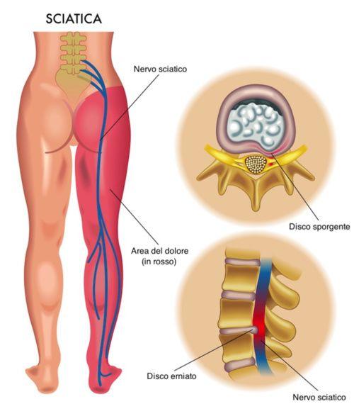 indolenzimento gambe prostatite