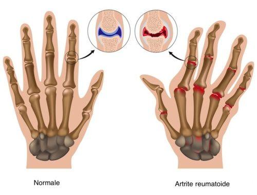 5 oli essenziali per il trattamento dell'artrite reumatoide