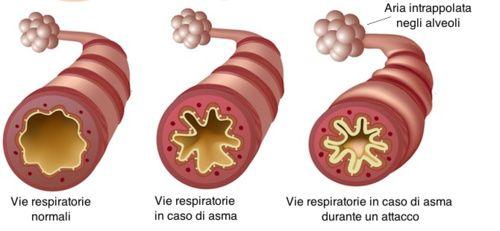 Asma, rimedi naturali
