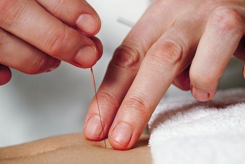 Agopuntura per l'infertilità