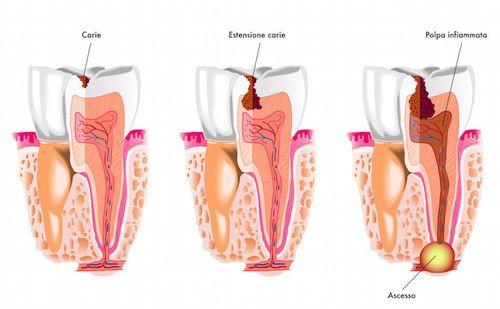 Ascesso dentale causato da carie