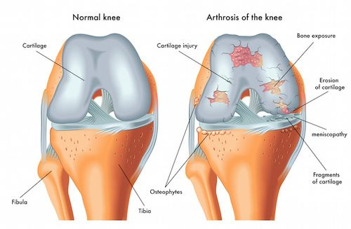 Trattare l'artrite reumatoide in modo naturale