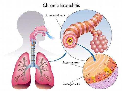 Bronchite, tutti i rimedi