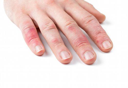 Dermatite, rimedi omeopatici