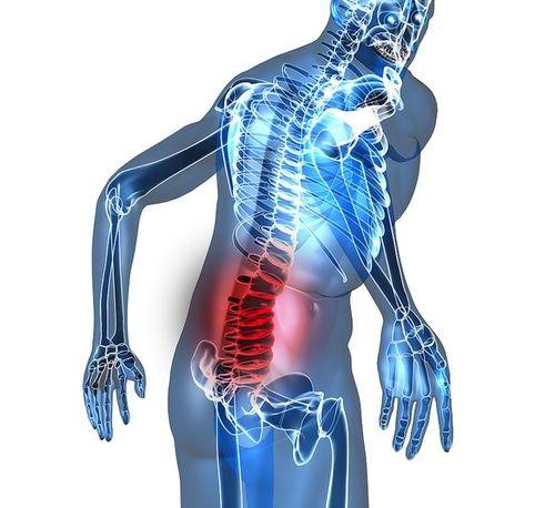 Mal di schiena: sintomi, cause, tutti i rimedi Cure