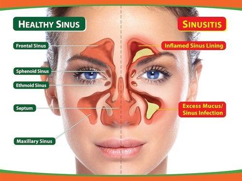 Sinusite, tutti i rimedi