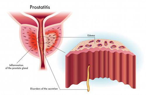 prostatite batterica cronica organismo più comune
