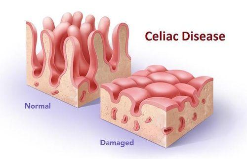 Celiachia: gli alimenti tollerati