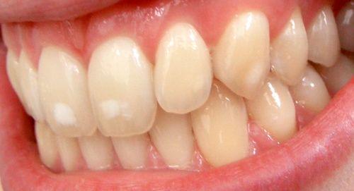 Denti macchiati tra i sintomi dell'eccesso di fluoro