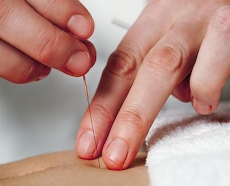 L'agopuntura per i disturbi digestivi