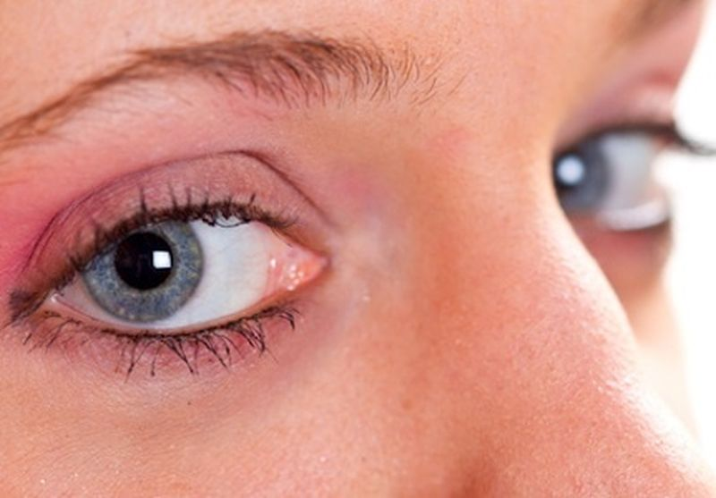 Quali cosmetici evitare in caso di orzaiolo?