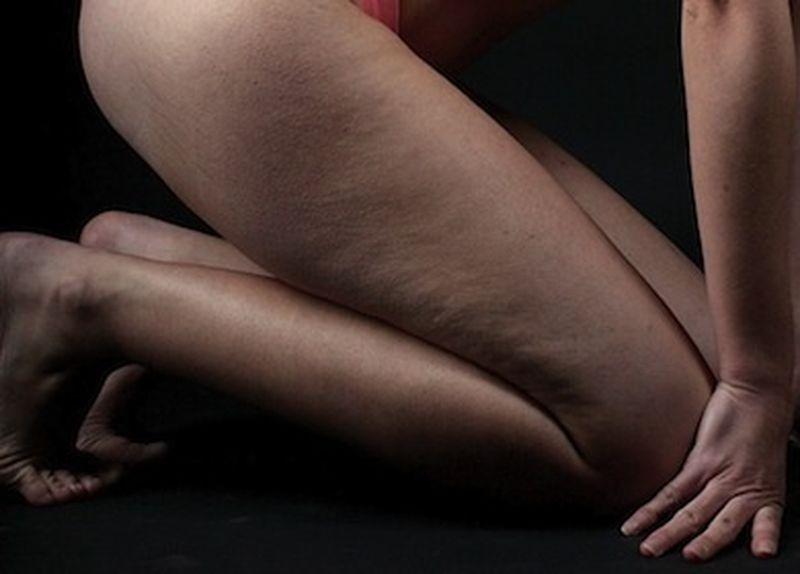 Shiatsu: un rimedio per la cellulite?