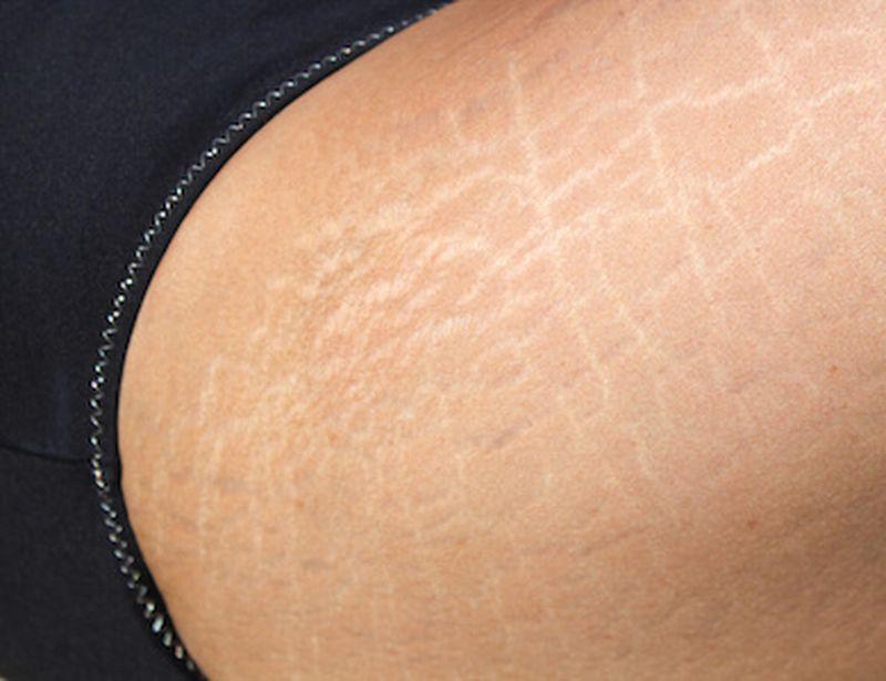 Contro le smagliature bianche prova i cosmetici naturali
