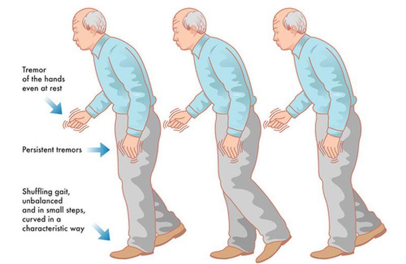 L'agopuntura nella cura della malattia del Parkinson