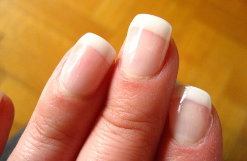 I rimedi naturali per le unghie fragili