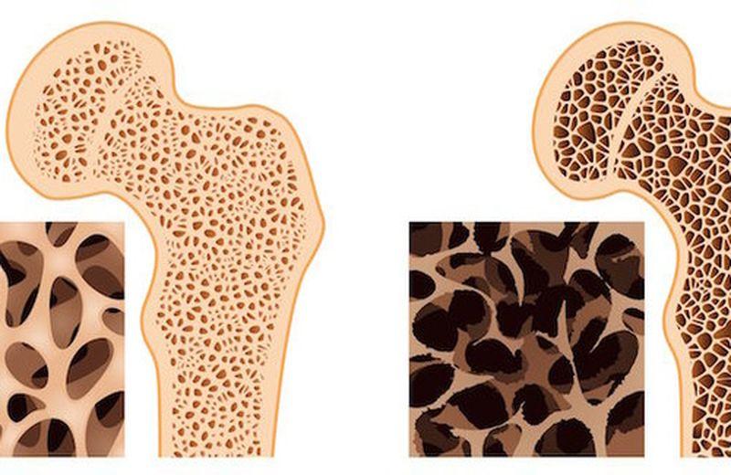 Il movimento e il sole nella prevenzione dell'osteoporosi