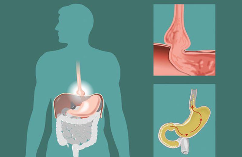 L'ernia iatale: come riconoscere i sintomi?
