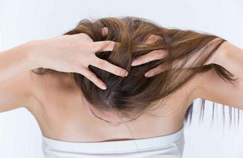Psoriasi del cuoio capelluto: rimedi per alleviarla