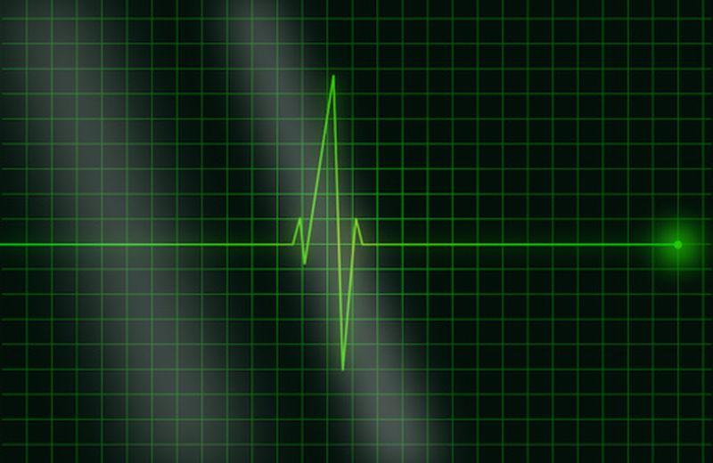 Aritmia cardiaca: tipologie, sintomi, cause