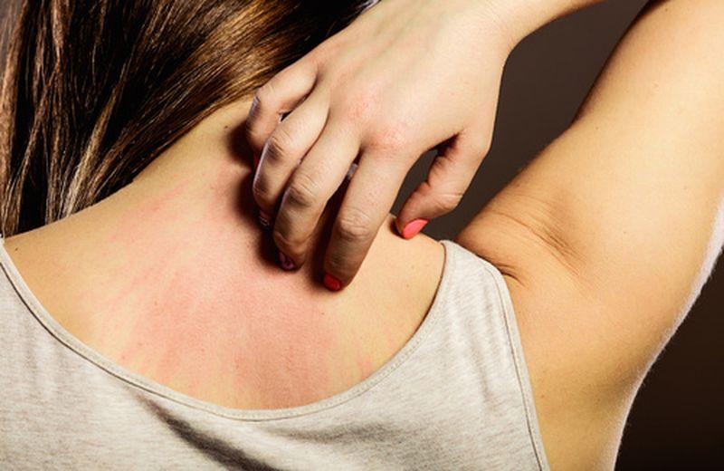 Prurito in tutto il corpo? Scopriamo le cause