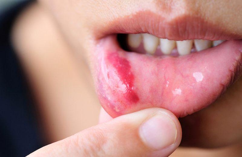 Stomatite, sintomi e rimedi naturali