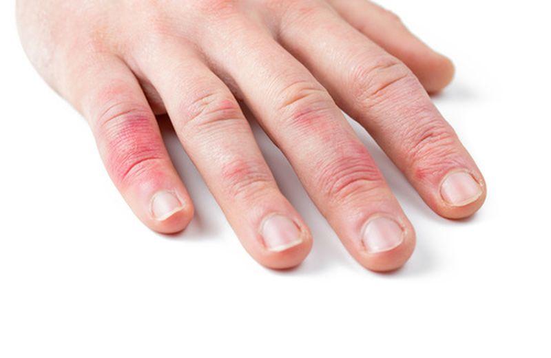 Psoriasi delle mani: sintomi e rimedi naturali