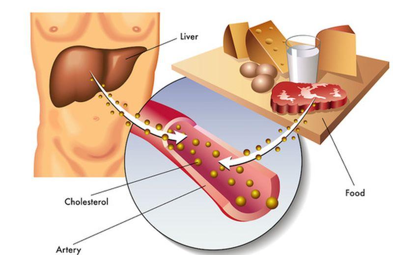 Colesterolo buono e cattivo, facciamo chiarezza
