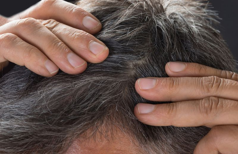 Dermatite seborroica al cuoio capelluto  cause c96fb0a56f2b