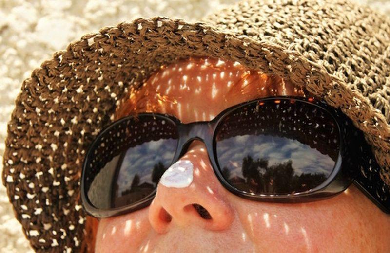 Eritema solare: i rimedi cosmetici