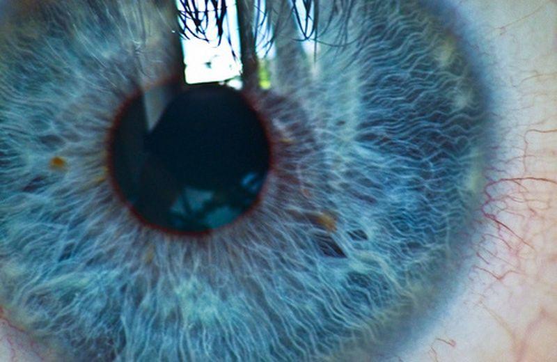 A me gli occhi: come leggere la mappa iridologica