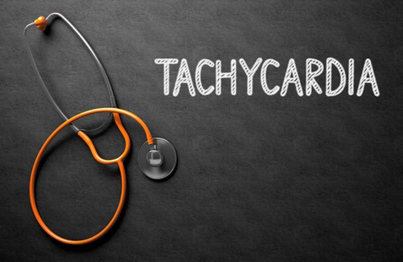 Tachicardia ventricolare: sintomi, cause e rimedi