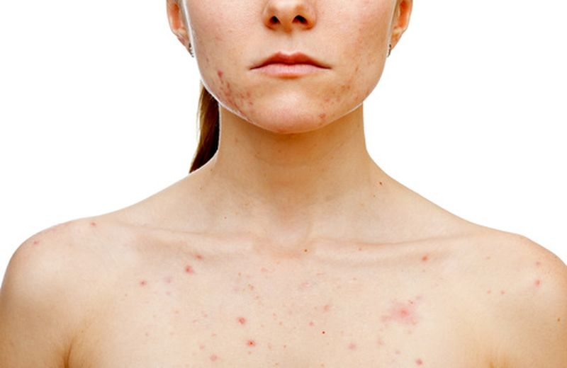 Dermatiti e stress, quale legame