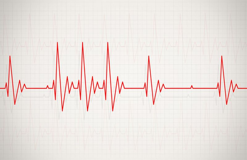 Tachicardia Parossistica: sintomi, cause e rimedi