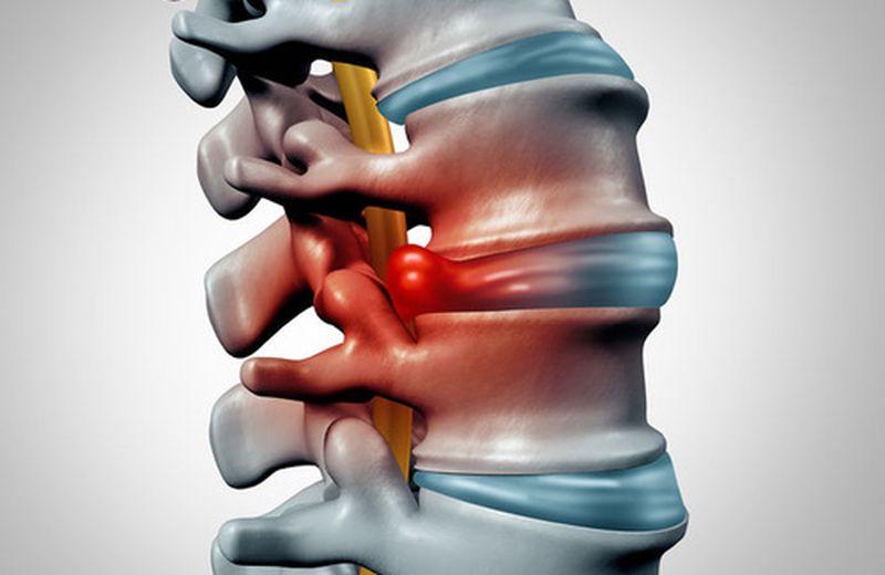 Un italiano su quattro soffre di discopatie vertebrali
