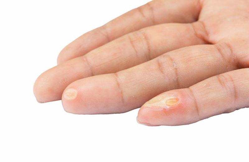Verruche delle mani: come riconoscerle e curarle