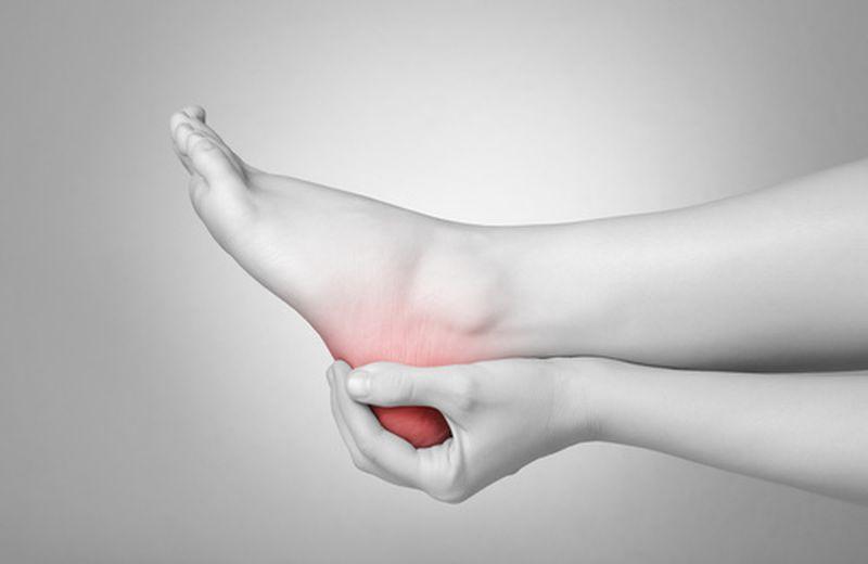 Spina calcaneare: sintomi e rimedi naturali