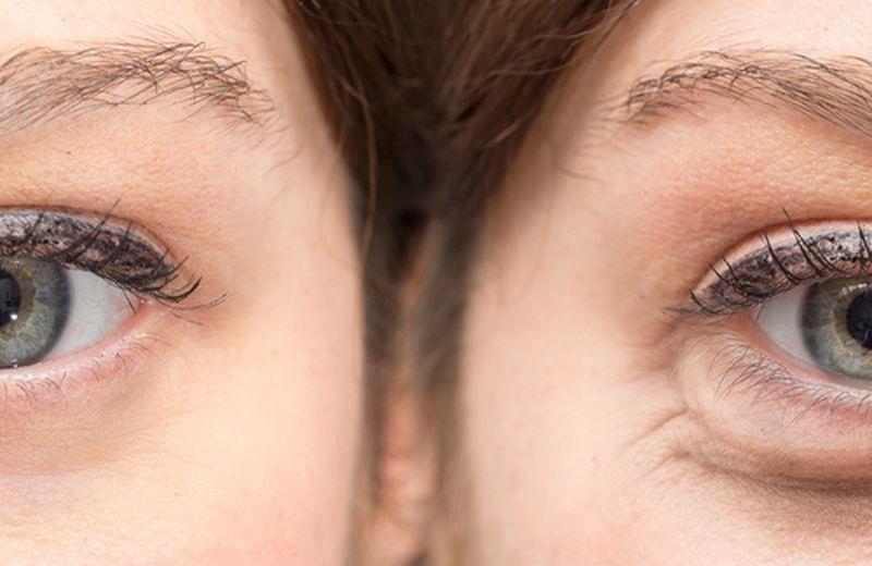 Come prevenire le rughe del contorno occhi