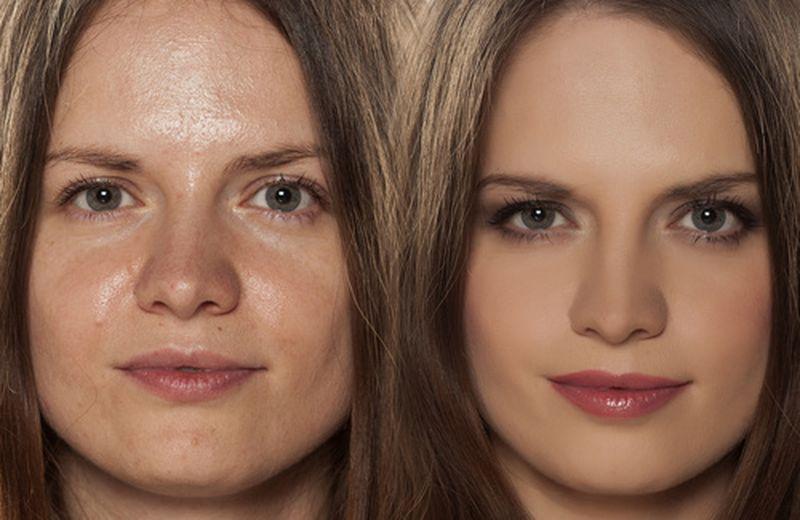 rimedi domestici per rimuovere il grasso in eccesso sul viso