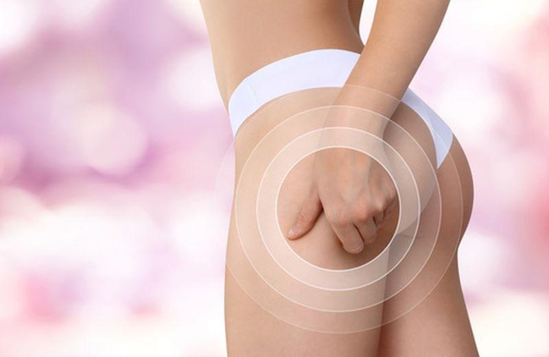 Integratori naturali contro la cellulite, i più efficaci